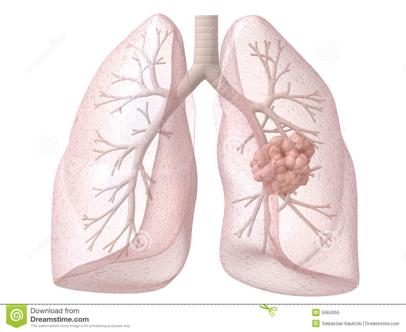 Lung cancer stock illustration. Illustration of anatomy - 11954226