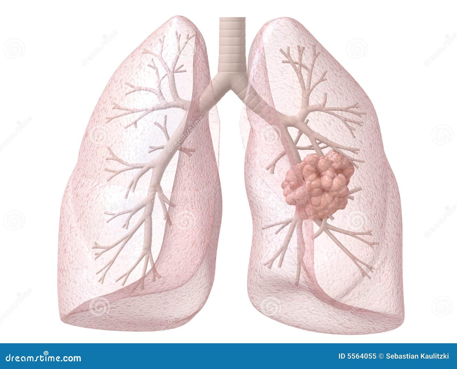 Großartig Anatomy And Physiology Of Lung Cancer Ideen - Menschliche ...