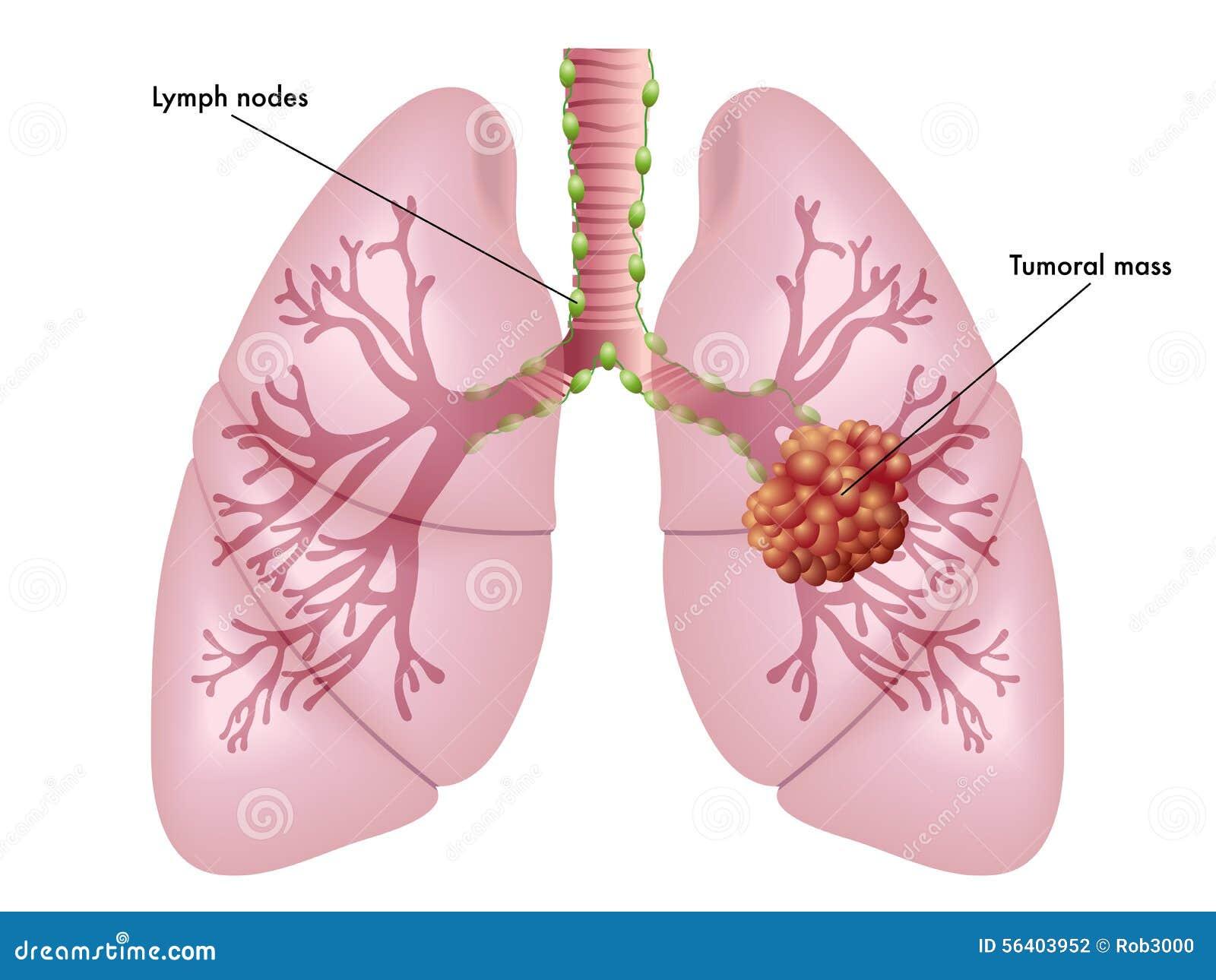 Lung cancer foto de stock imagem de apetite cigarro 56403952 download lung cancer foto de stock imagem de apetite cigarro 56403952 ccuart Image collections