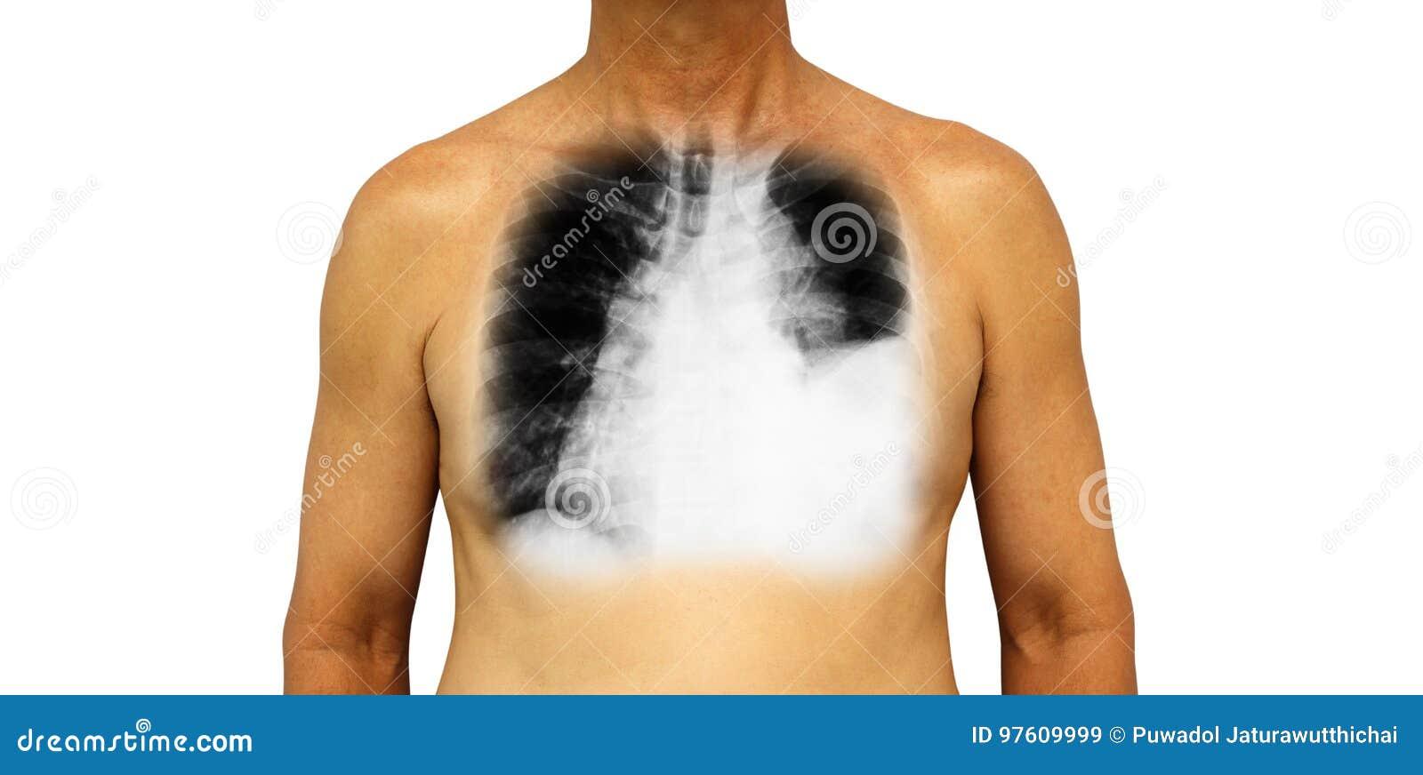 Lung Cancer Den mänskliga bröstkorgen och röntgenstrålen visar pleural effusion som tack vare lämnas lungcancer för lungan