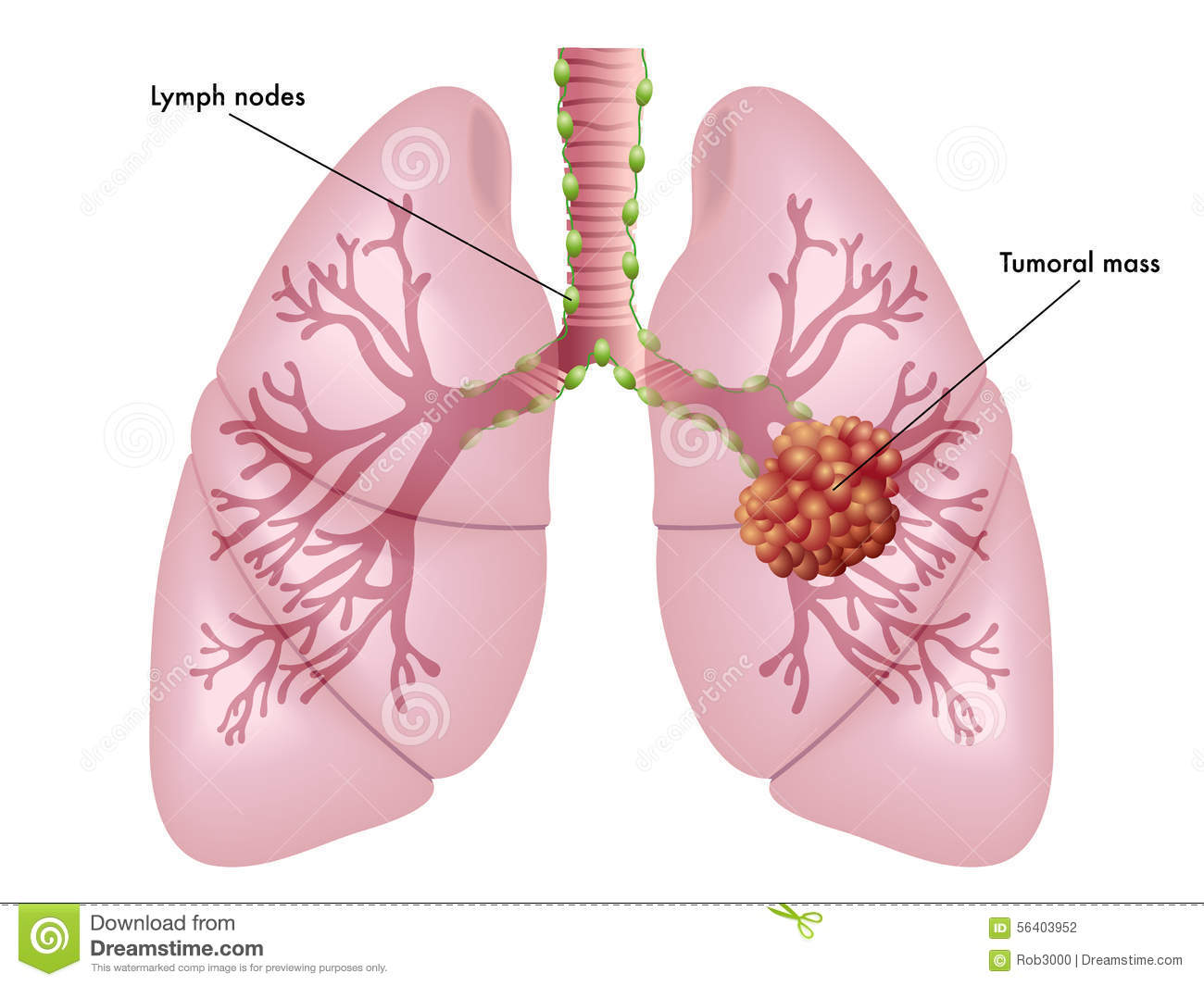 lung cancer stock photo image 56403952 : lung cancer diagram - findchart.co