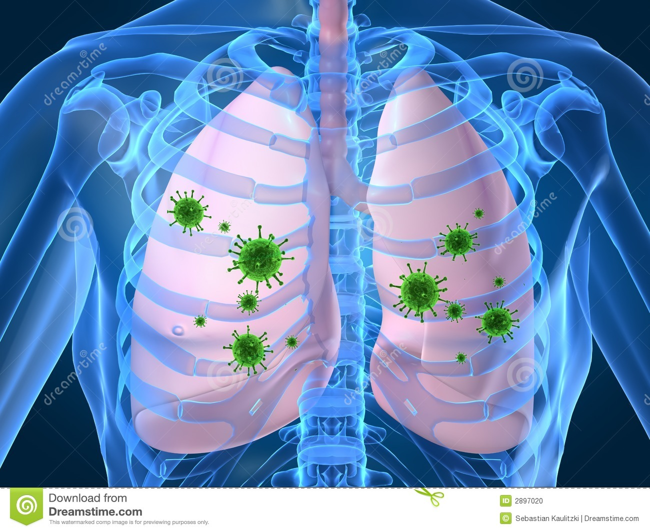 Lung Infection Clip Art