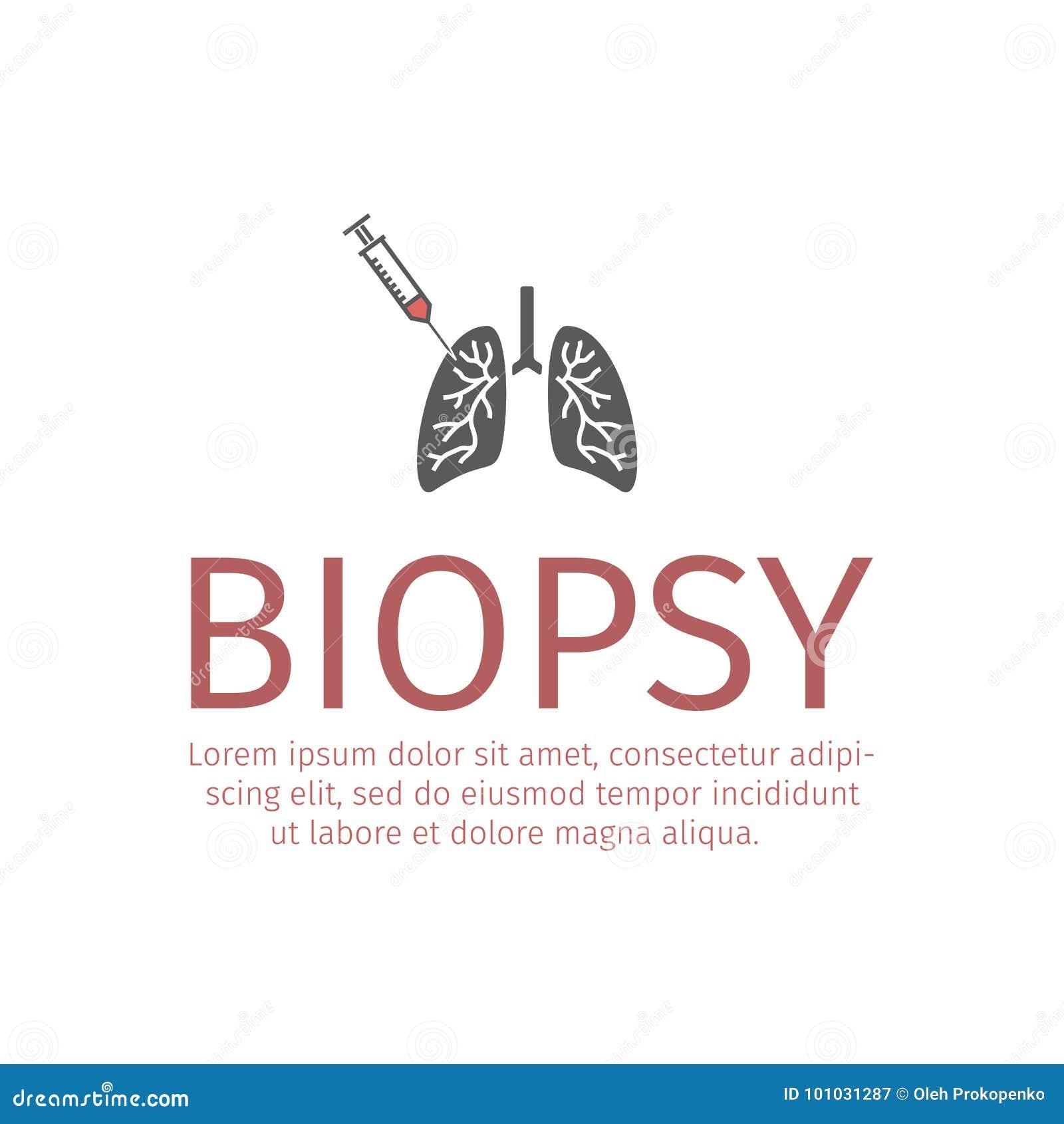 Lungen biopsieren flache Ikone