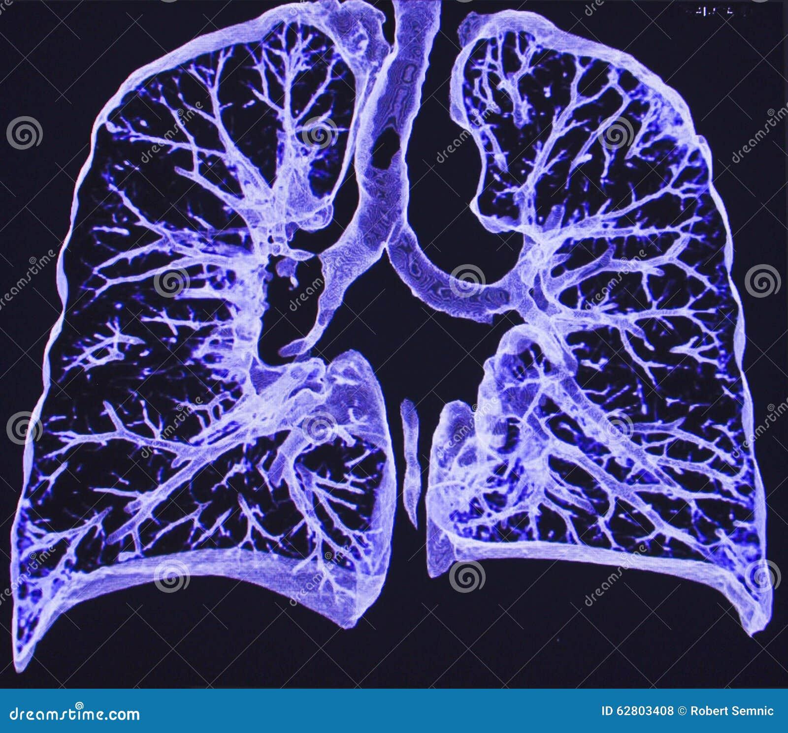 Lungen, CT stockfoto. Bild von chirurgie, diagnose, person - 62803408