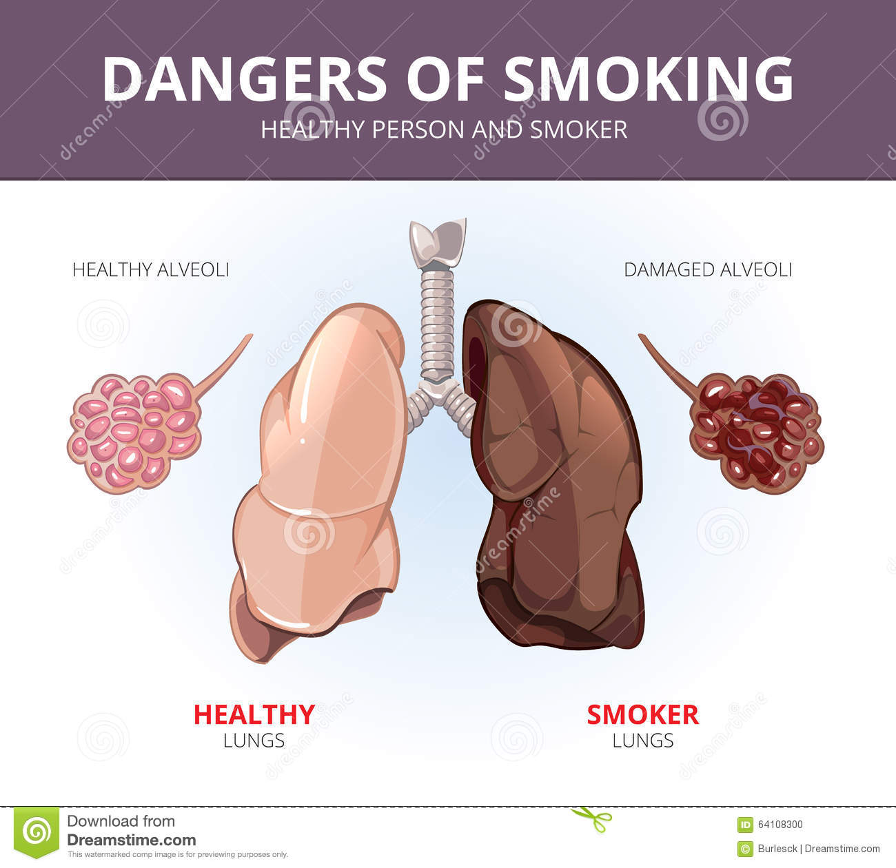 Lungs And Alveoli Of A Healthy Person Smoker Stock Vector ...