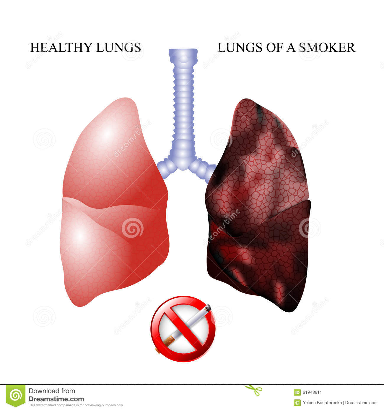 The Lungs Of A Healthy Person And Smoker Stock Vector ...