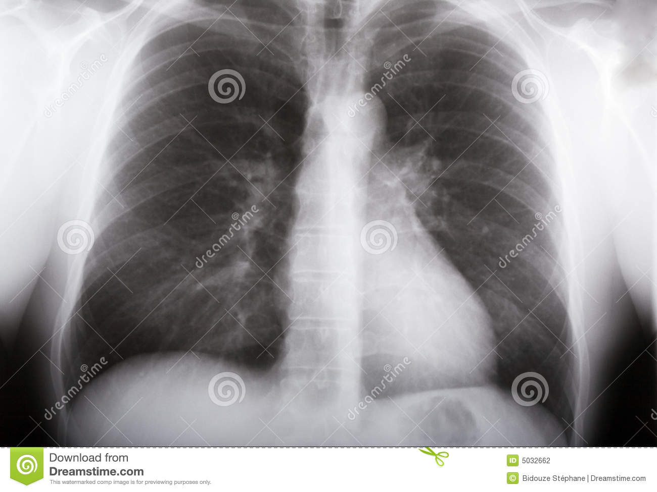 Lungs xray