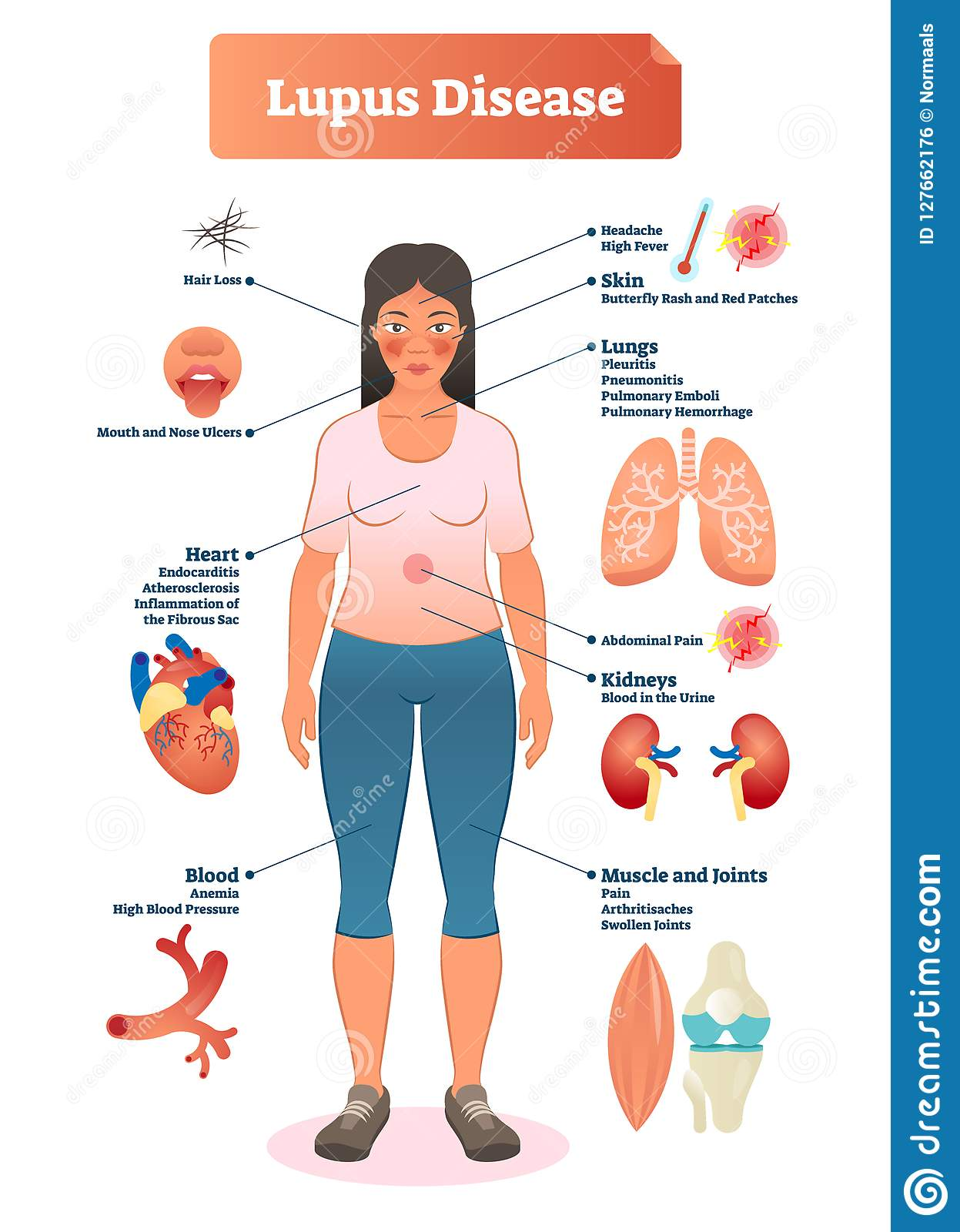Lupus Disease Vector Illustration  Labeled Diagram With