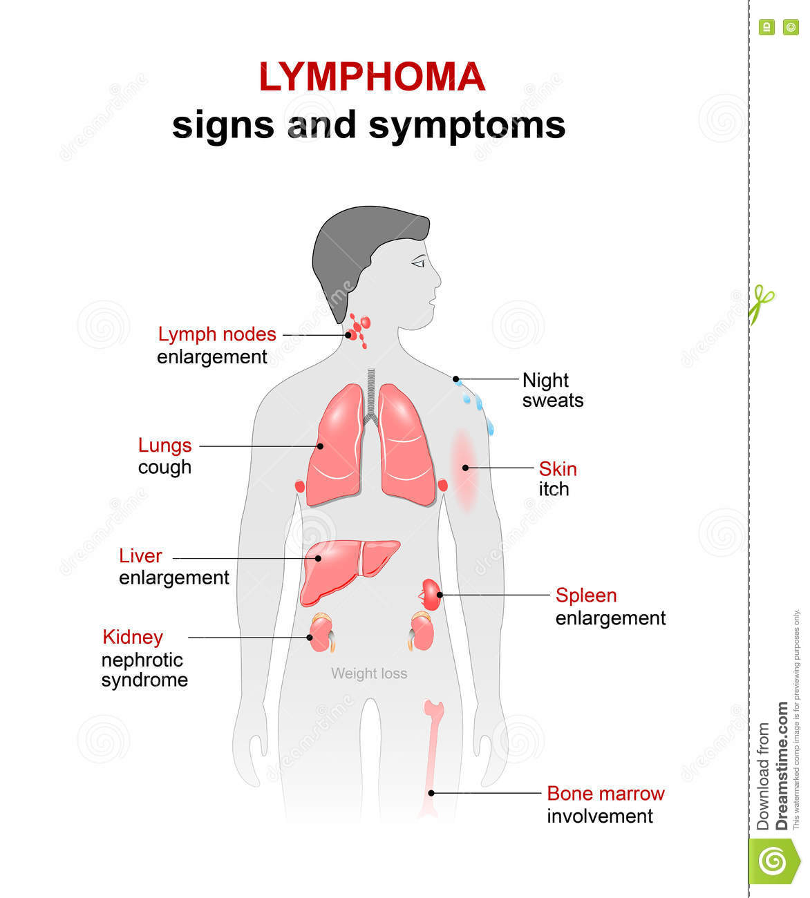 lymphoma signs and symptoms stock vector illustration of