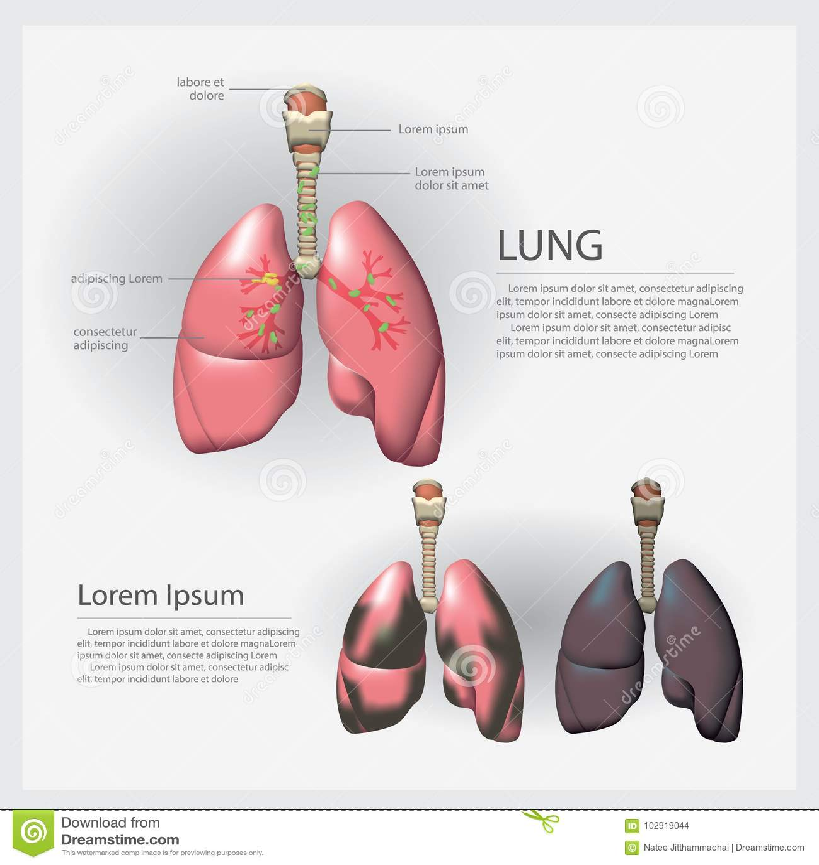 Mänsklig anatomilunga med detaljen och Lung Cancer