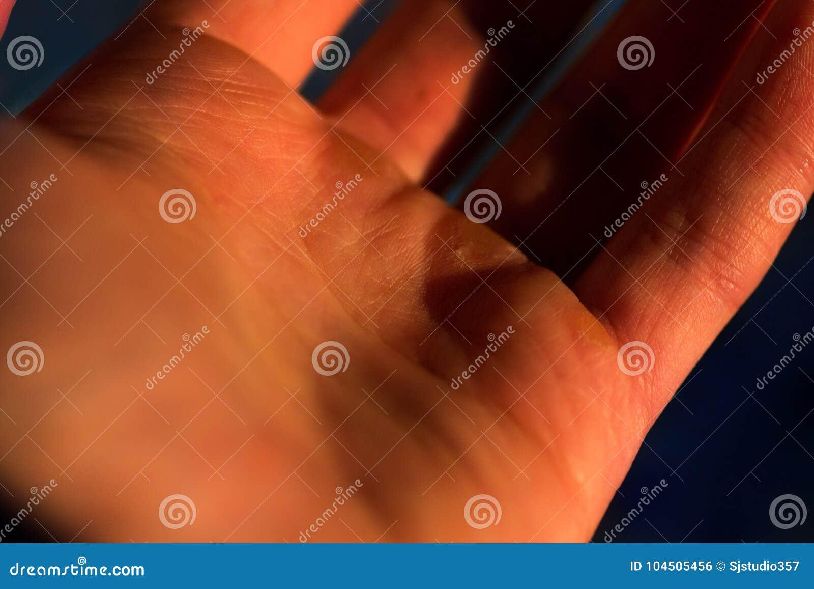Mänsklig hand i makroen, livlinje, valkar förestående