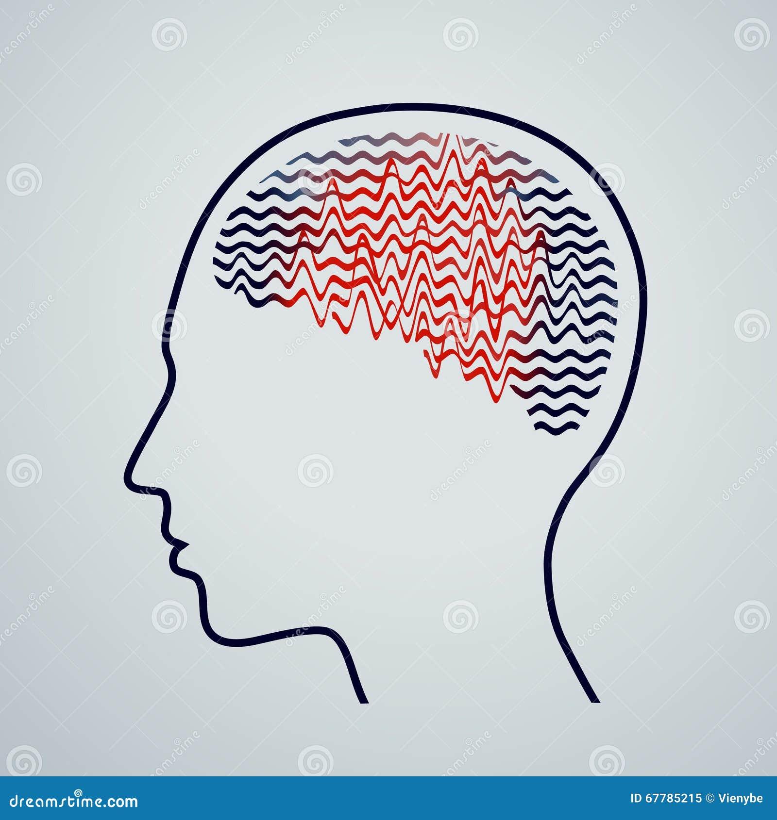 Mänsklig hjärna med epilepsiaktivitet, vektorillustration