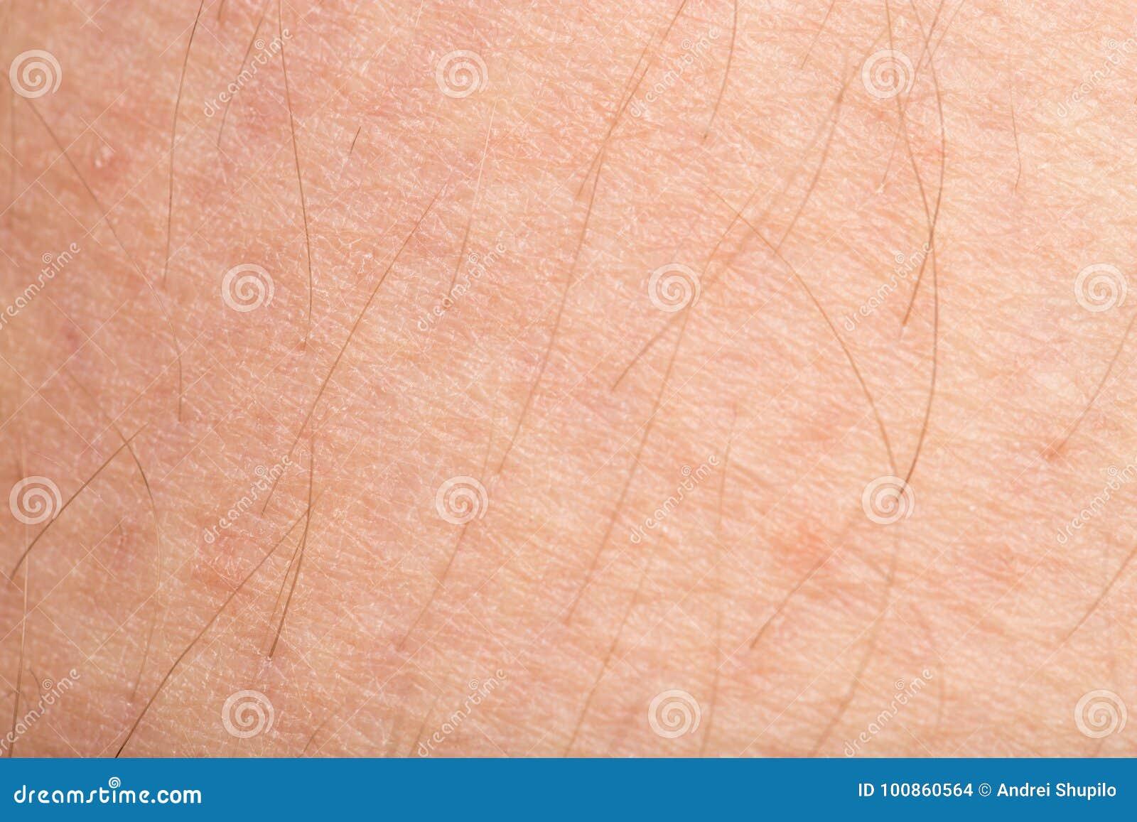 Mänsklig hud Makro