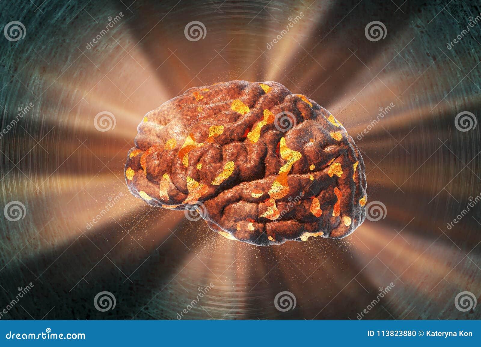 Móżdżkowy zniszczenie, medyczny pojęcie dla móżdżkowej choroby, burnout, depresja, migrena lub migrena,