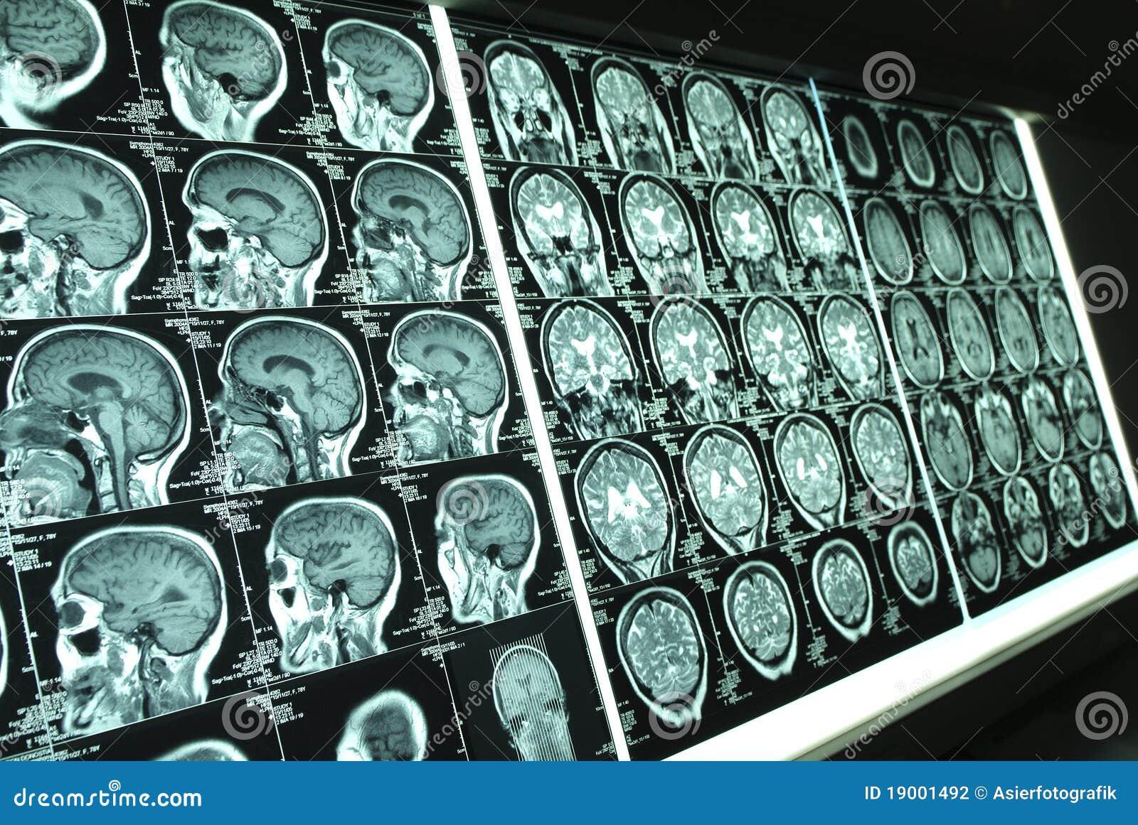 Mózg ray001 x