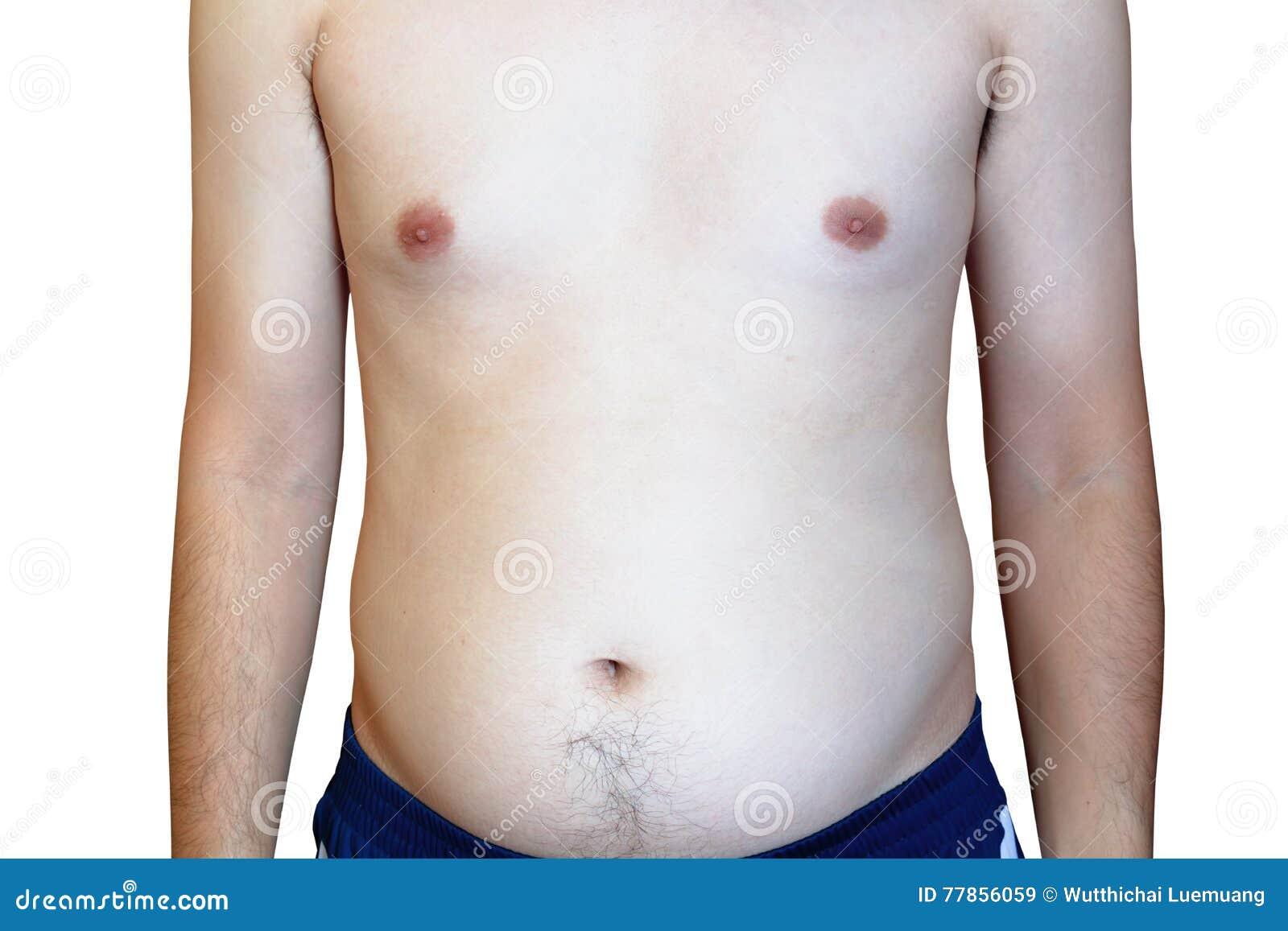 Mężczyzna jest prawdopodobny Zatykać arterie, Gruby mężczyzna z dużym brzuchem