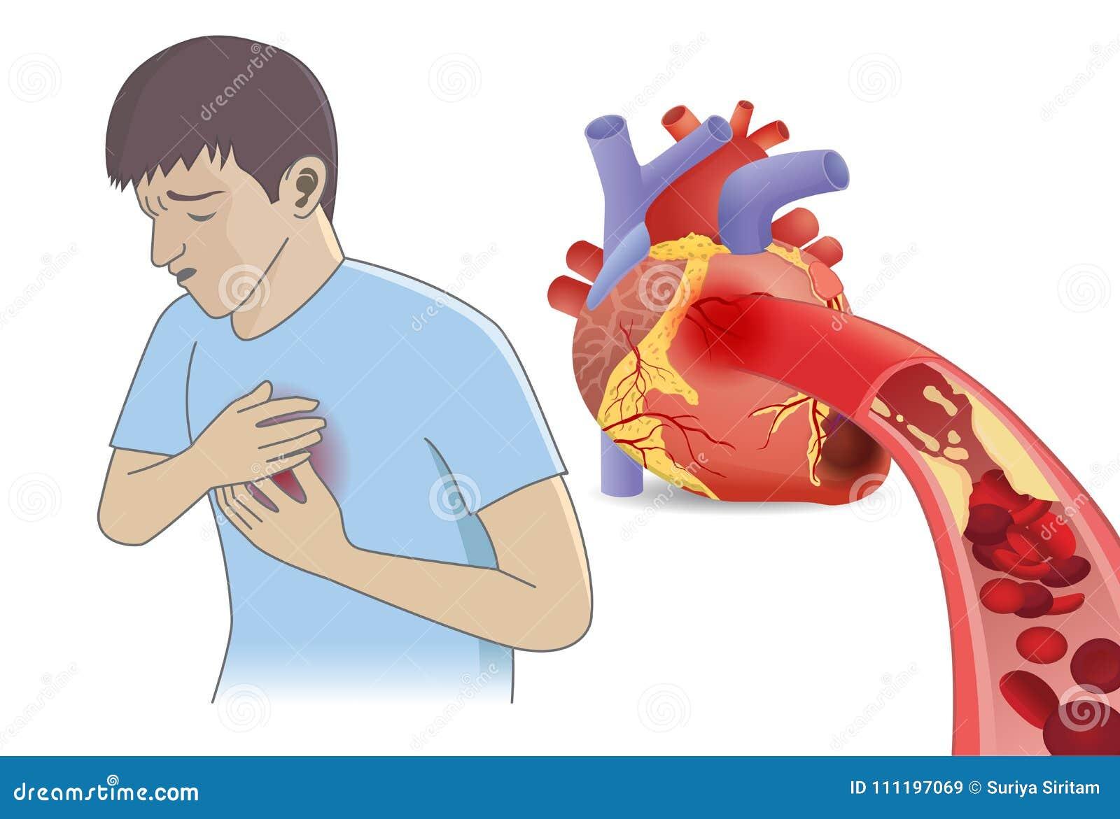 Mężczyzna klatka piersiowa ból od komórki krwi może ` t przepływ w serce grubasem