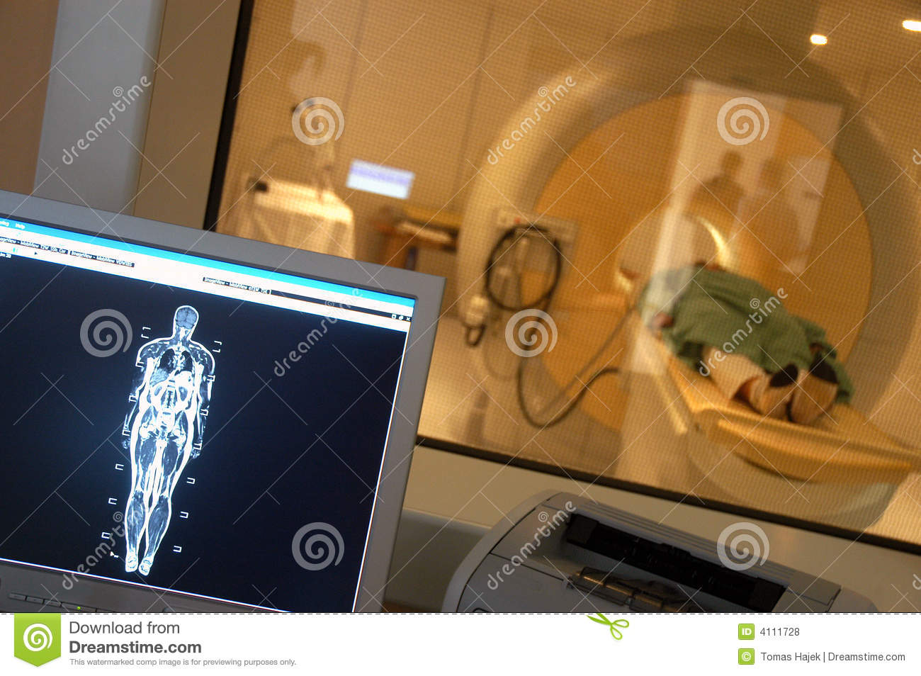 Magnetic resonance imaging 01