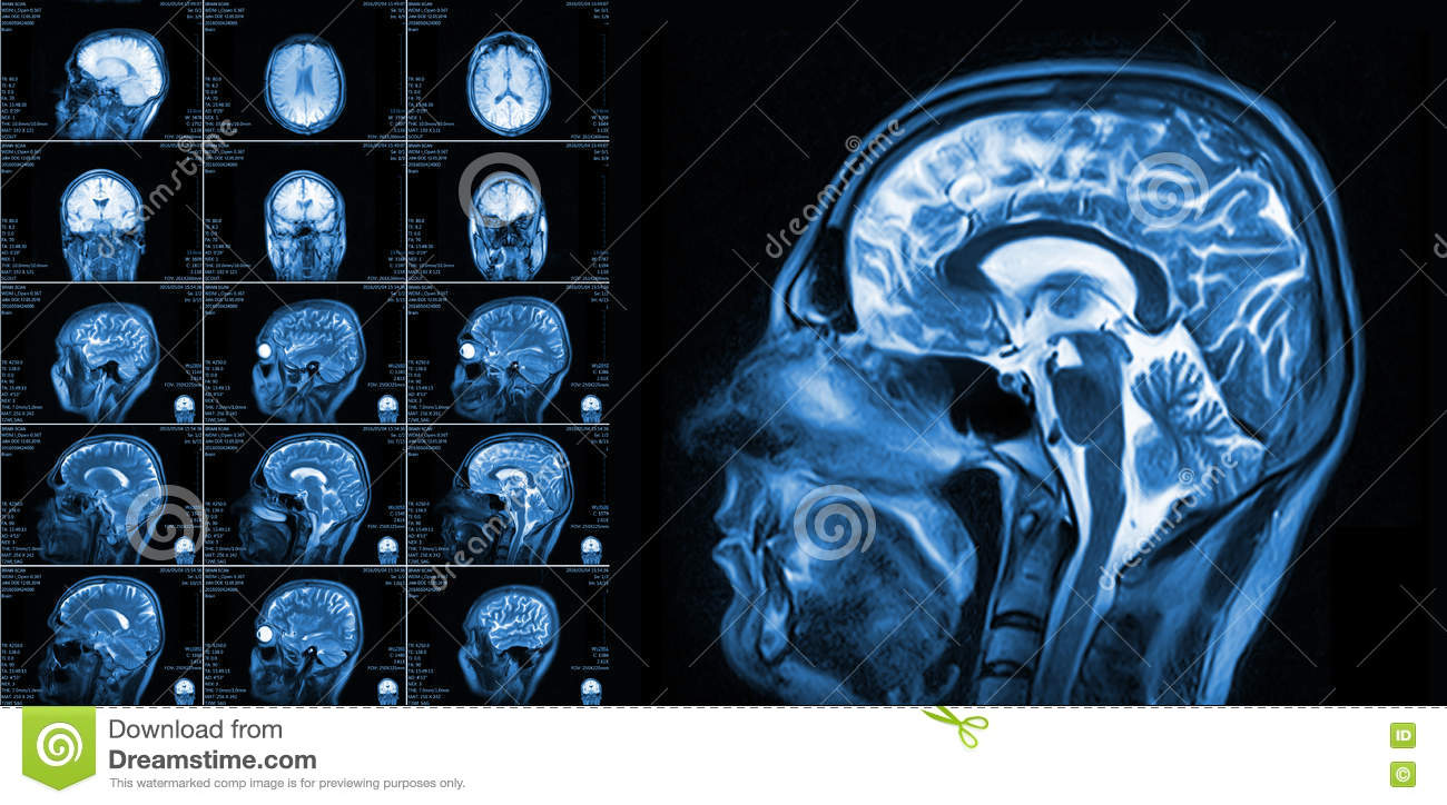 Magnetic Resonance Imaging Of The Brain Stock Photo - Image of human ...