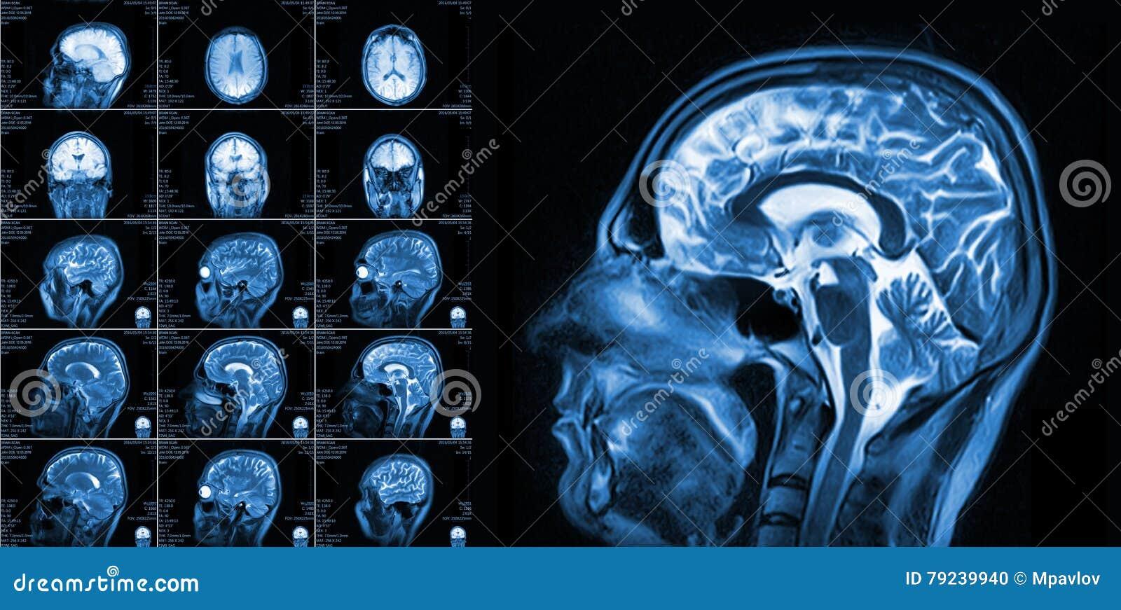 Magnetic Resonance Imaging Of The Brain Stock Photo - Image of human ...