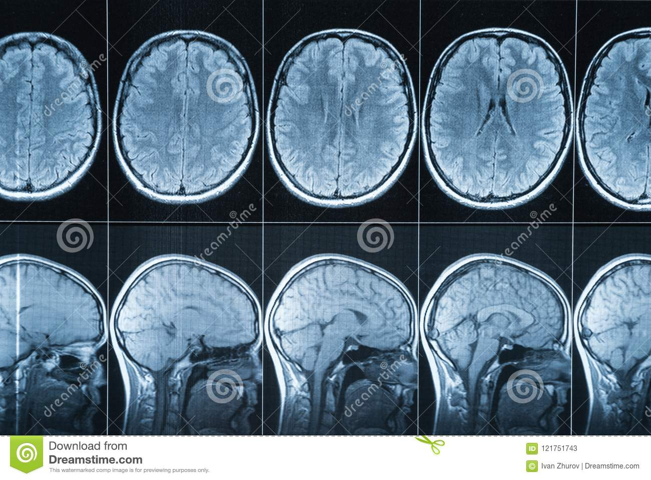 Magnetic resonance imaging of the head, MRI
