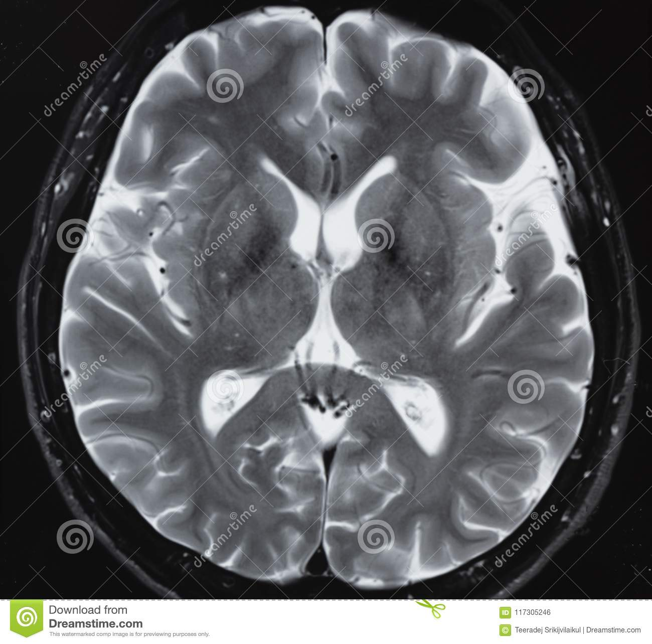Mri Of Normal Human Brain Anatomy Stock Photo Image Of Body