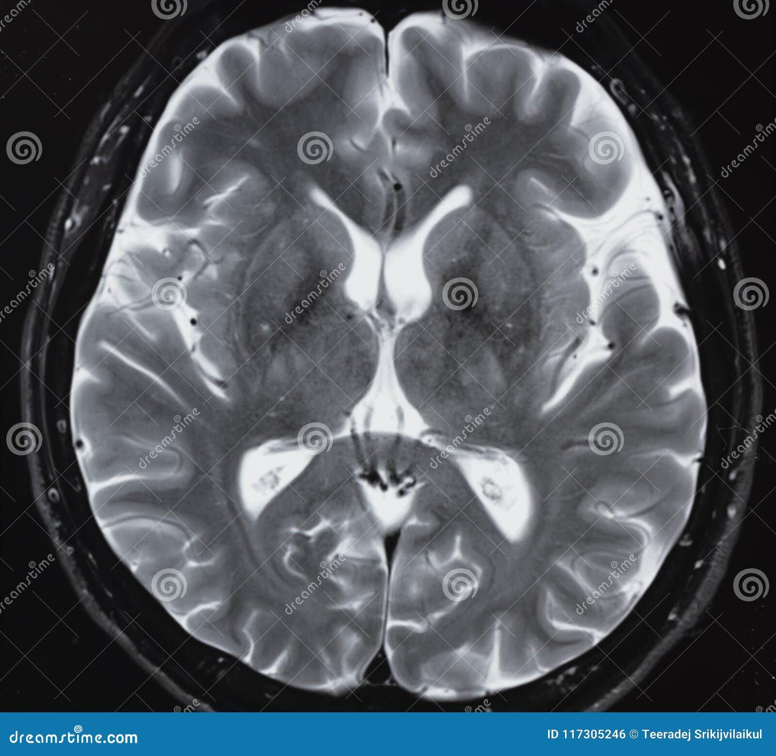 MRI Of Normal Human Brain Anatomy Stock Photo - Image of body ...