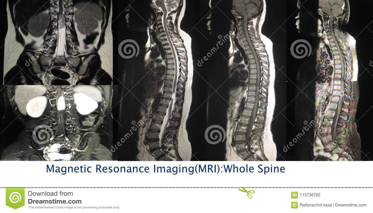 Magnetic Resonance Imaging Of The Whole Spine. Stock Photo - Image ...