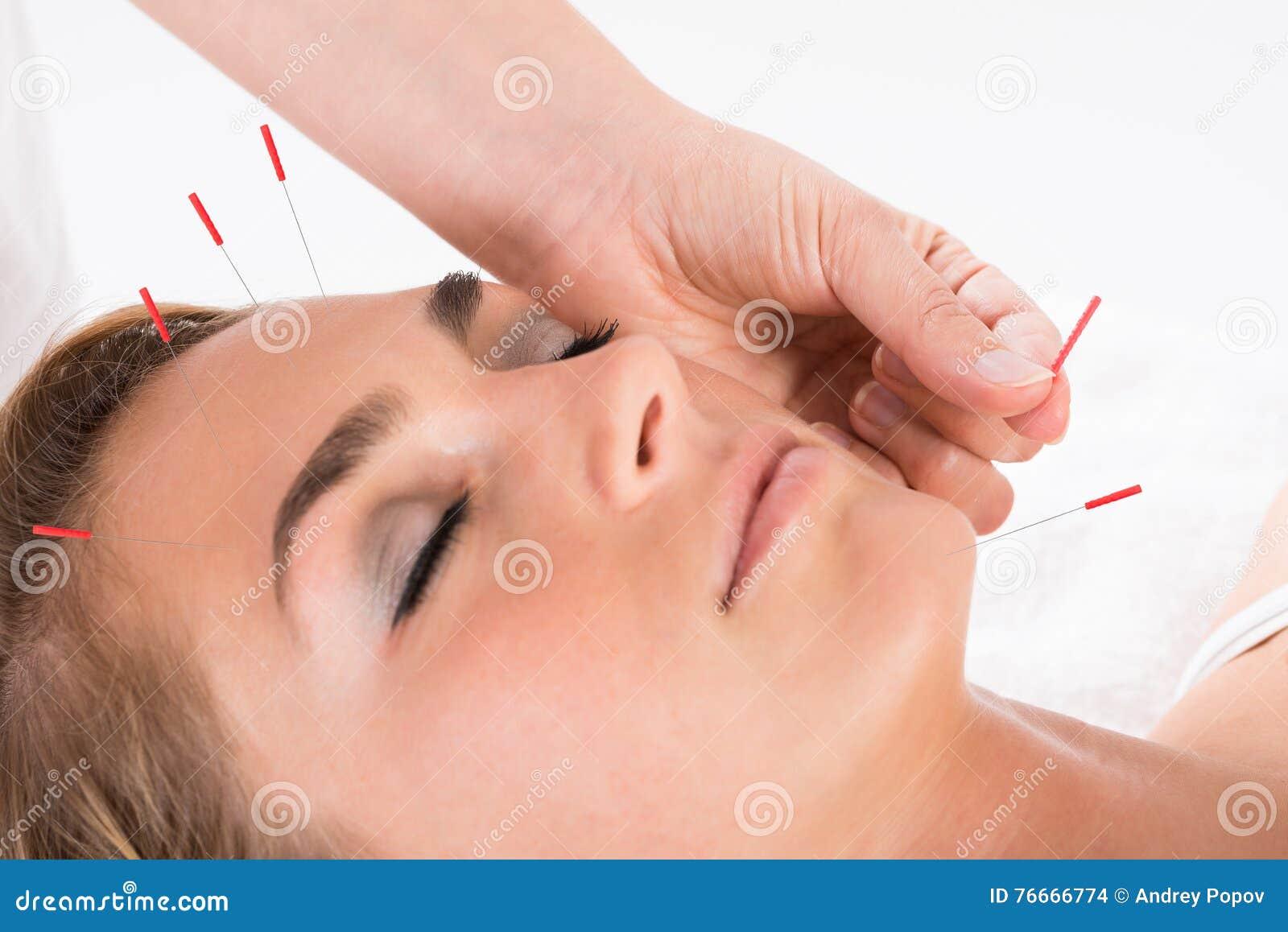 Main effectuant la thérapie d acuponcture sur la tête
