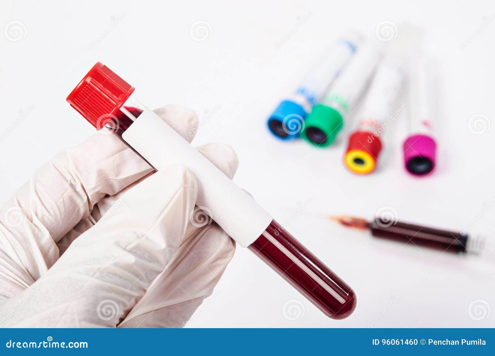 Main tenant le tube à essai avec le plasma sanguin