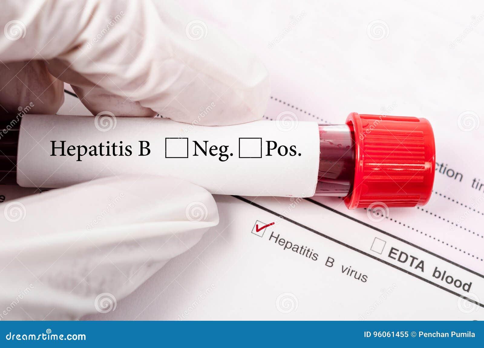 Main tenant le tube de sang pour l essai d hépatite