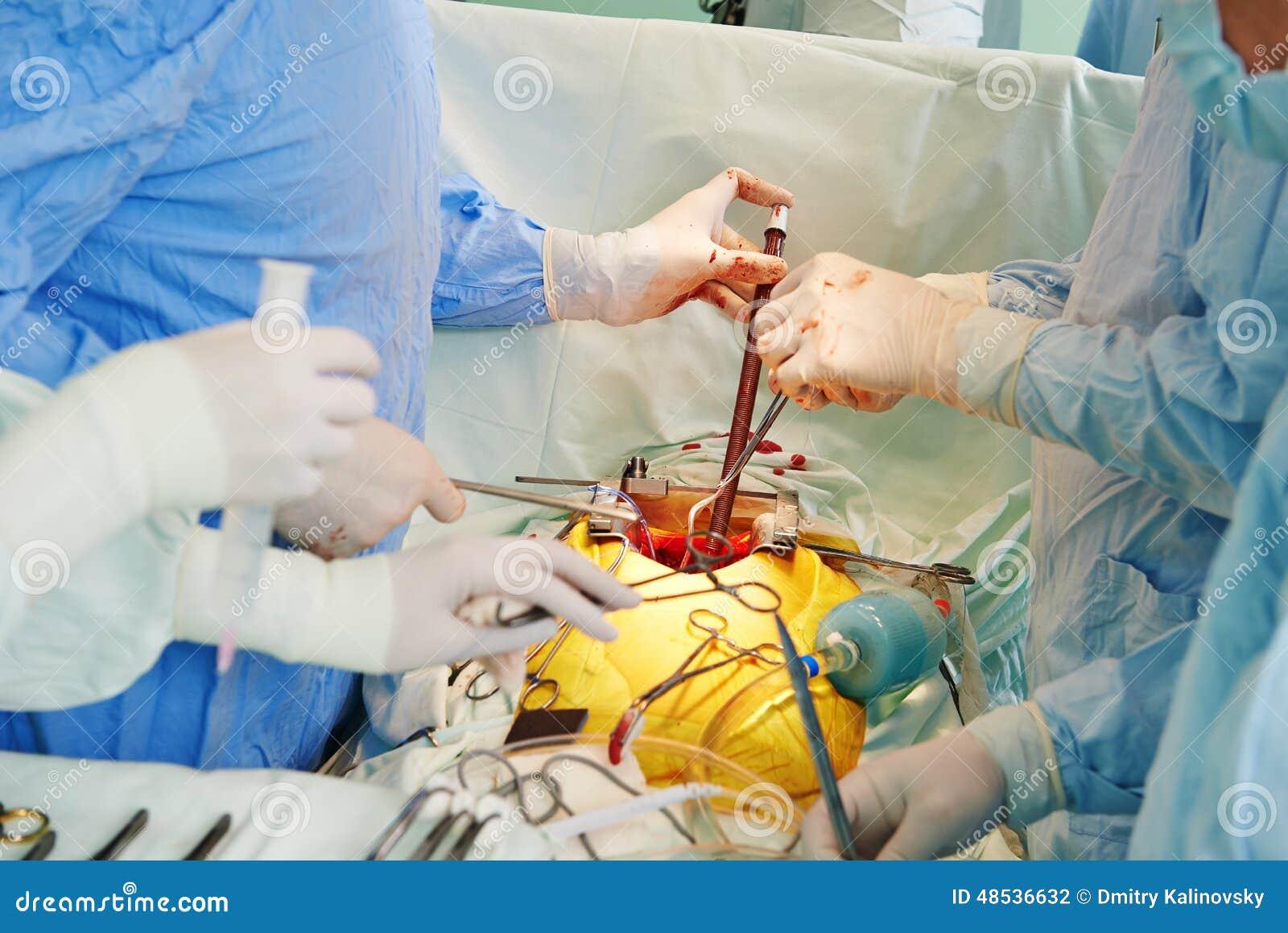 Mains de chirurgiens à l opération cardiaque de chirurgie