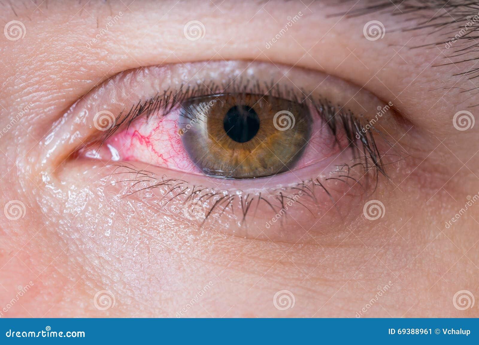 Makro av det röda ögat för bindhinneinflammation