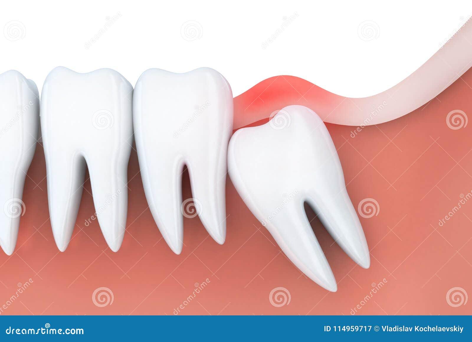 mal de dents dans la dent de sagesse illustration stock illustration du dents toothache. Black Bedroom Furniture Sets. Home Design Ideas