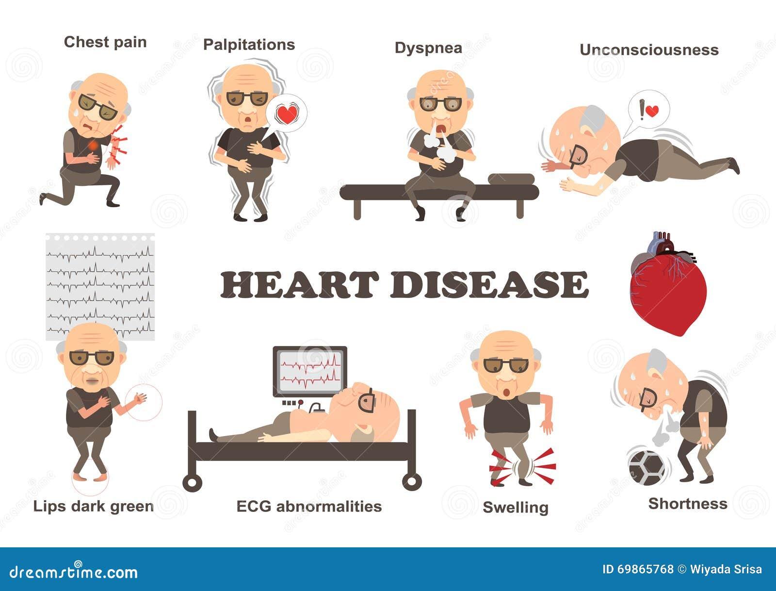 Maladie Cardiaque De Sympt 244 Mes Illustration De Vecteur