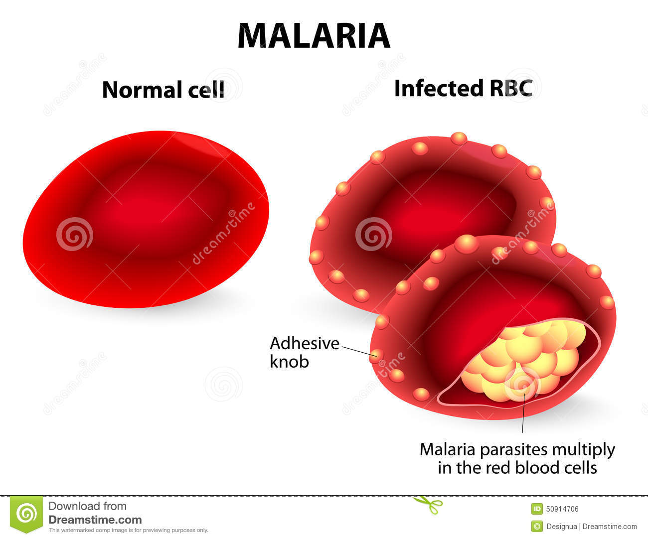 Malaria normal and infected red blood cells stock vector normal and infected red blood cells pooptronica Gallery