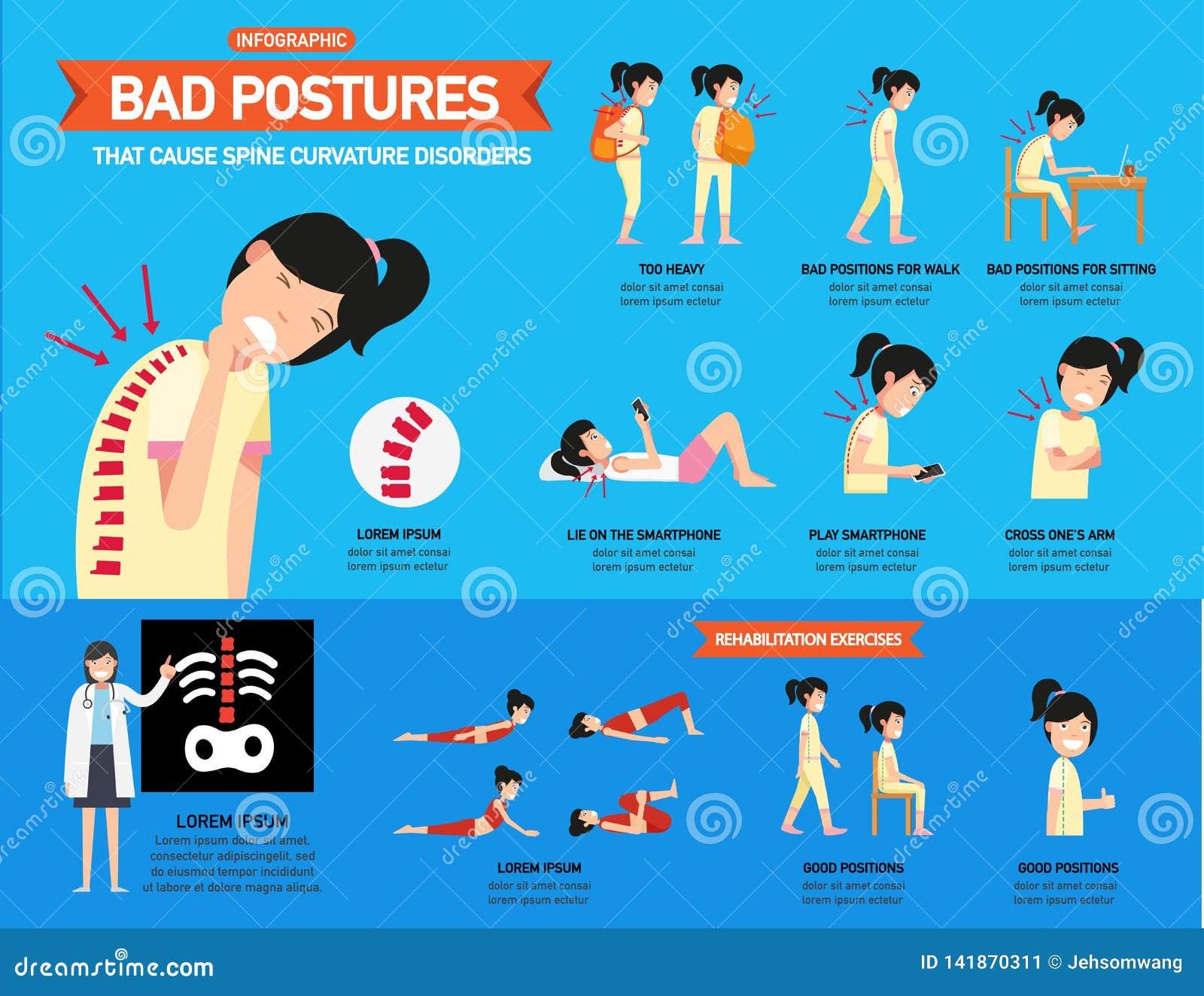 Malas posturas que causan los desordenes de la curvatura de la espina dorsal infographic