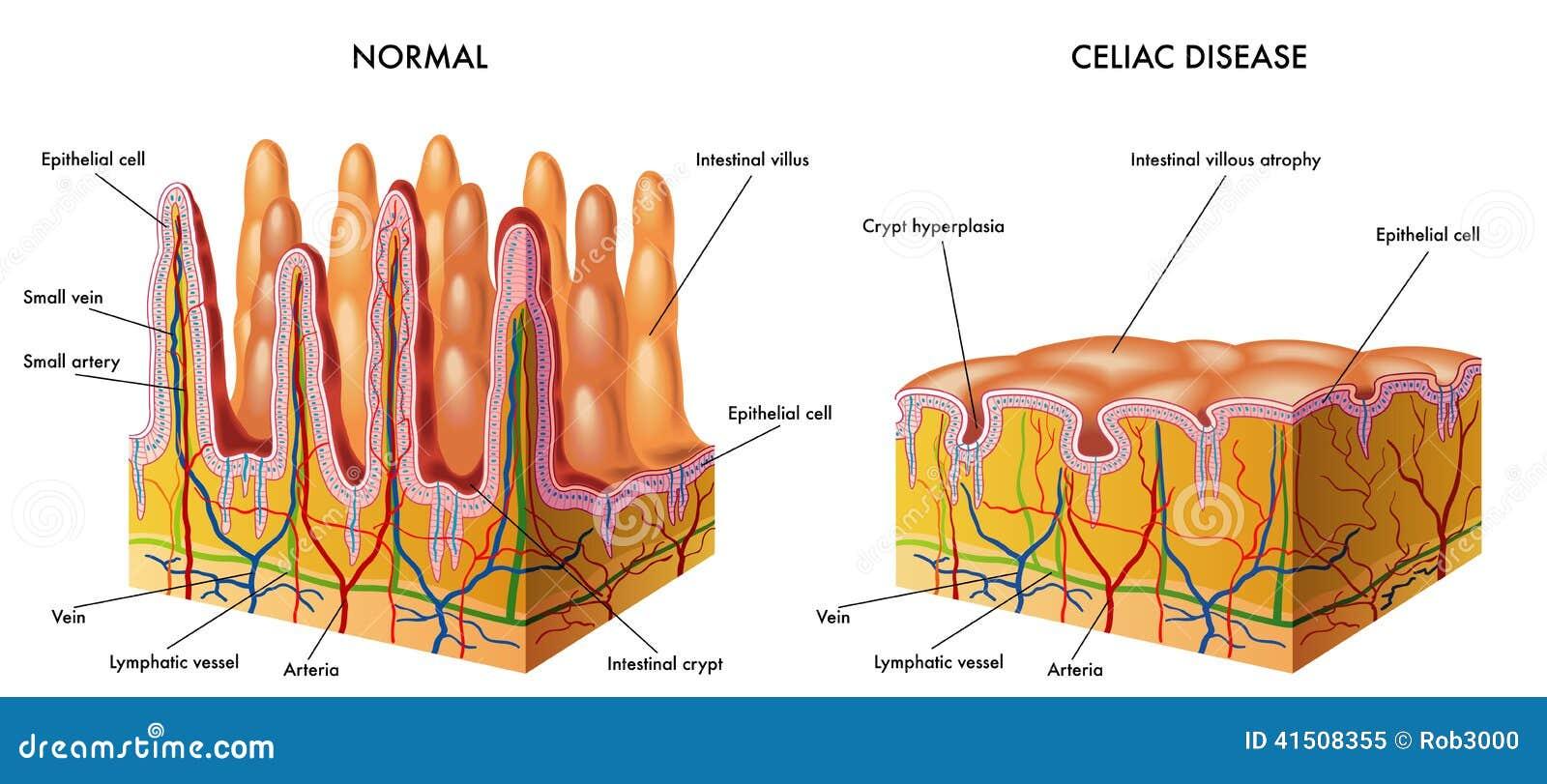 Malattia celiaca