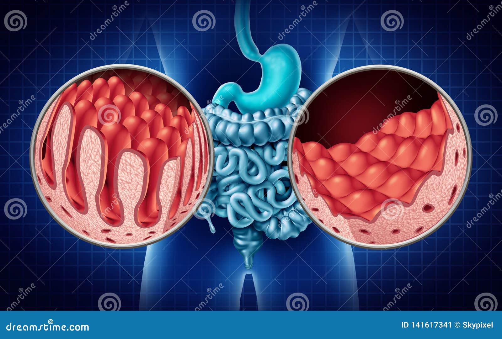 Malattia celiaca dell intestino