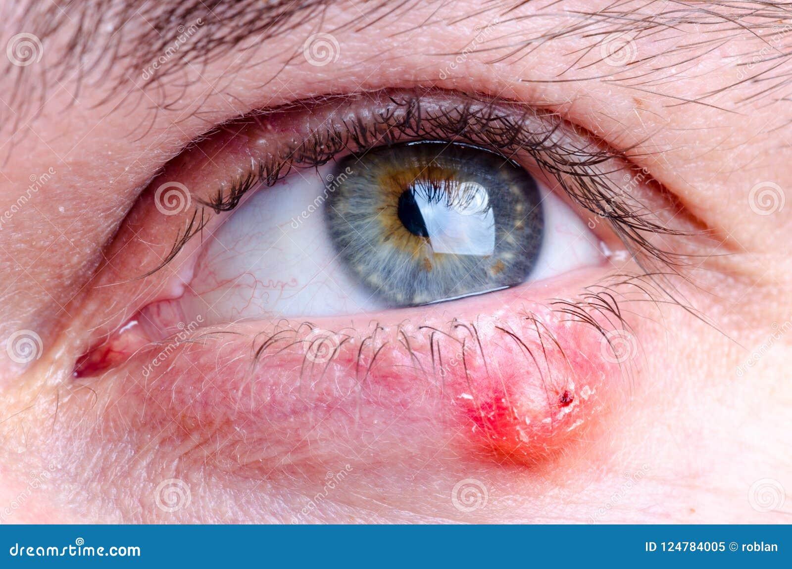Malattia di hordeolum del porcile sull occhio di una femmina caucasica