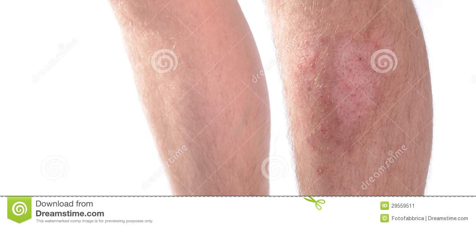 Crema di decolorazione per la pelle di swarty