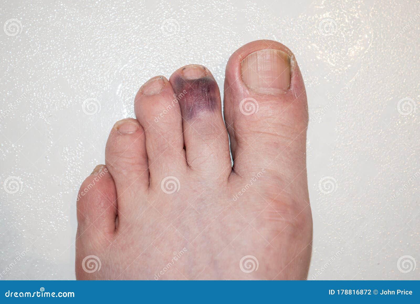 Purple stubbed toe Stubbed my