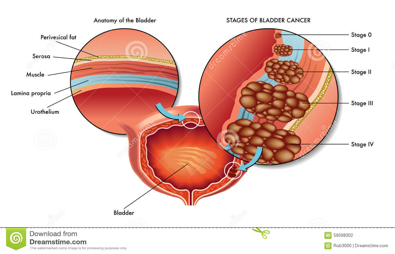 Male bladder Cancer stock vector. Illustration of urinate - 59598302