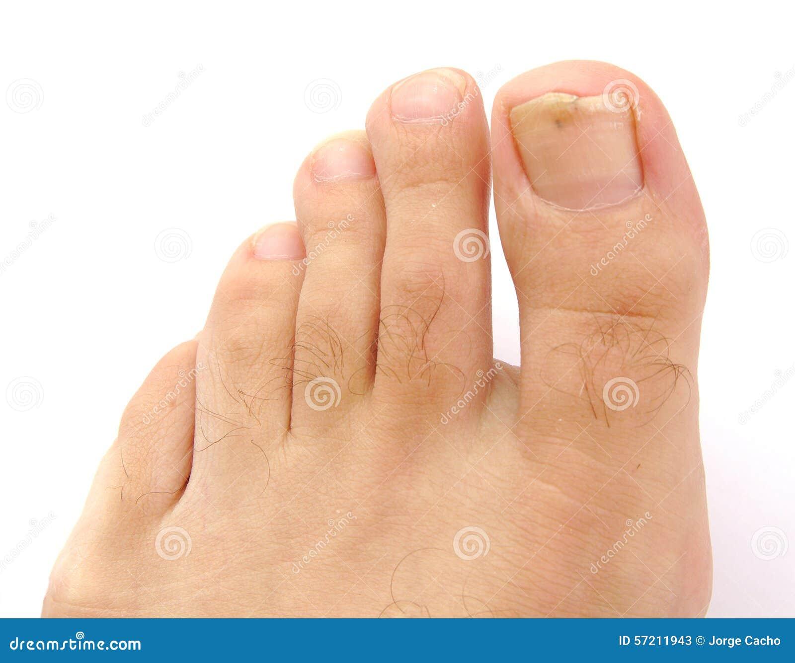male toes pics