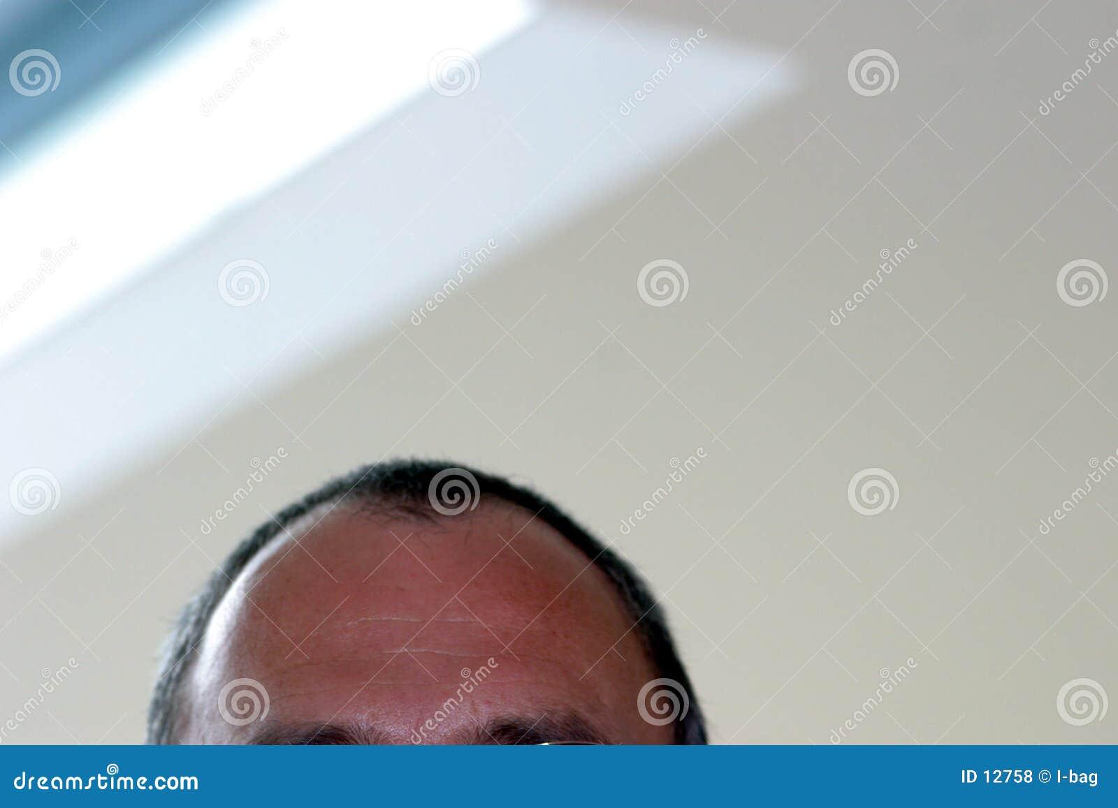 Male forehead