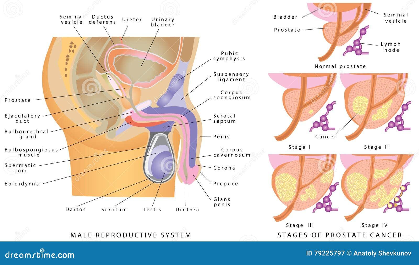 Großartig Anatomy Of Prostate Cancer Zeitgenössisch - Menschliche ...