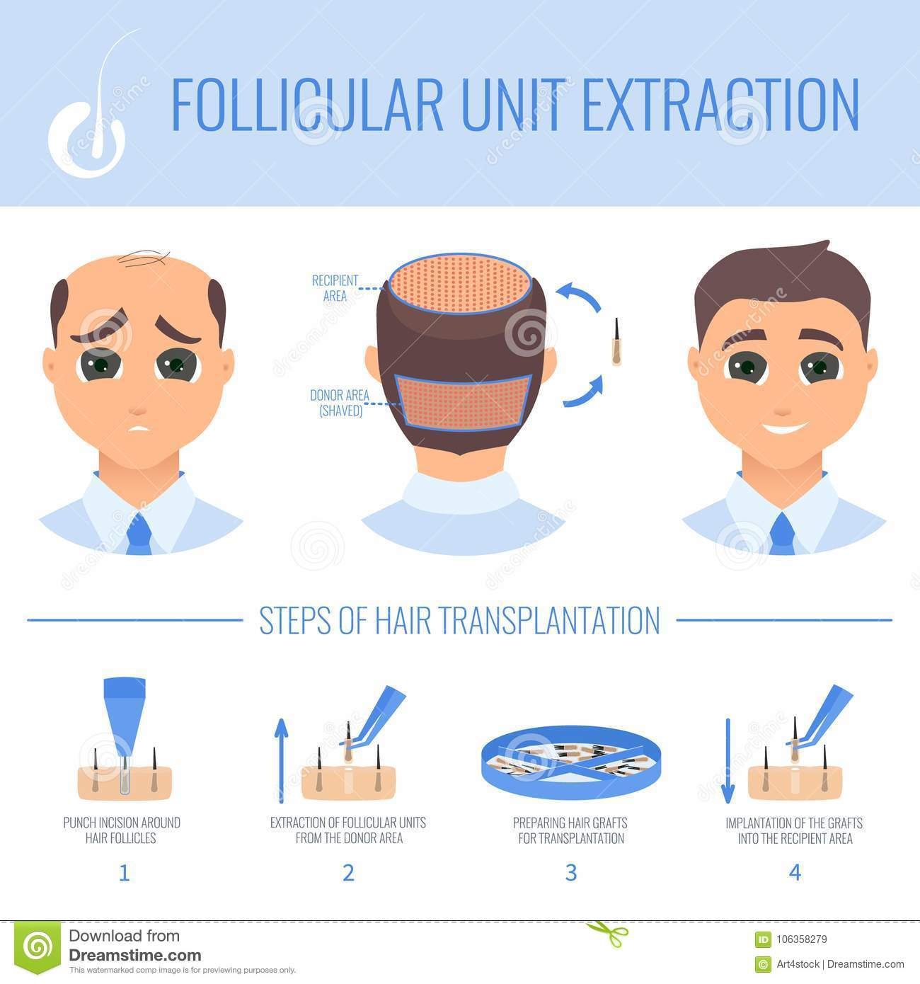 Transplantation With FUE In Men Stock Vector - Illustration of care