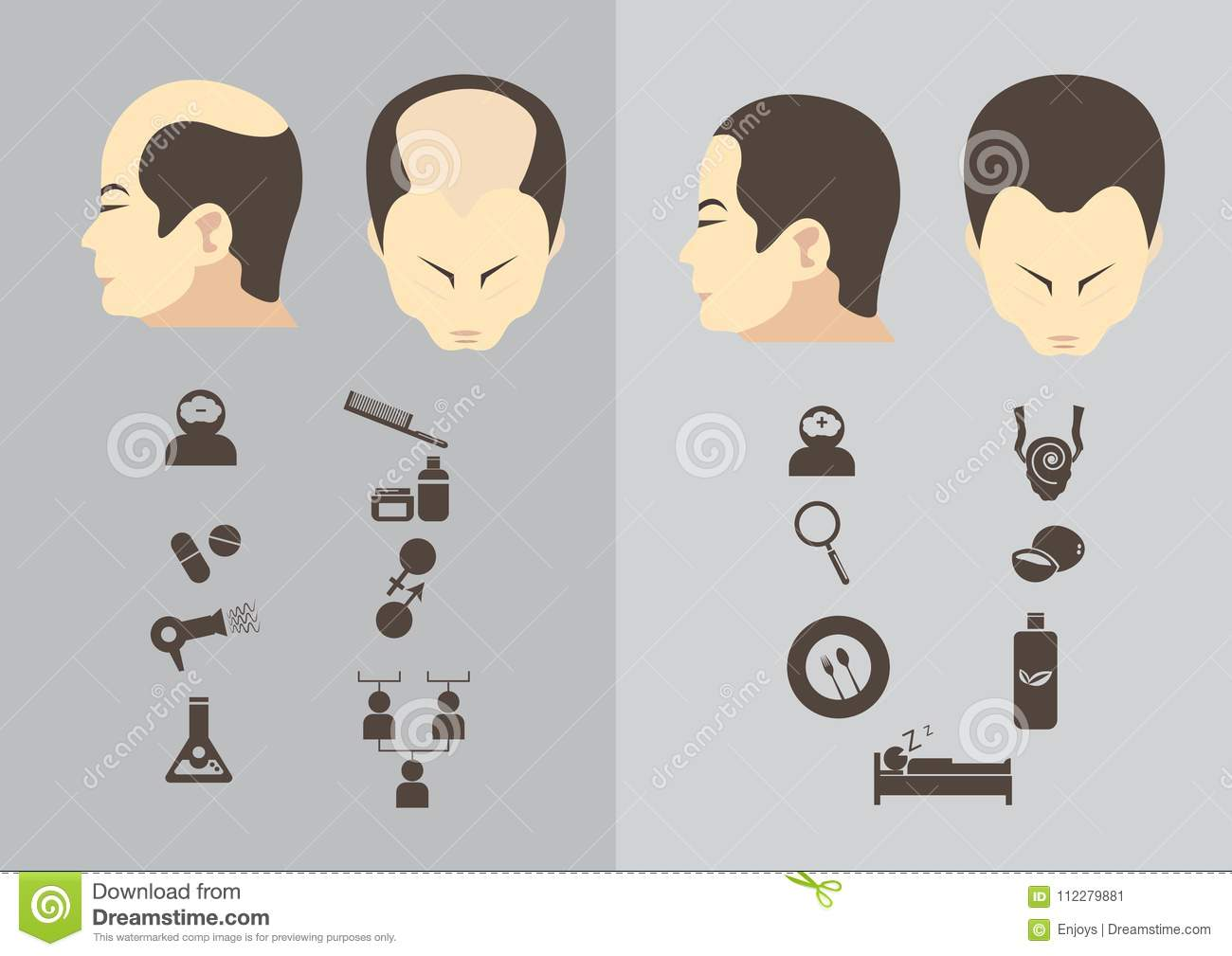 Male Pattern Baldness Stages Best Inspiration Ideas
