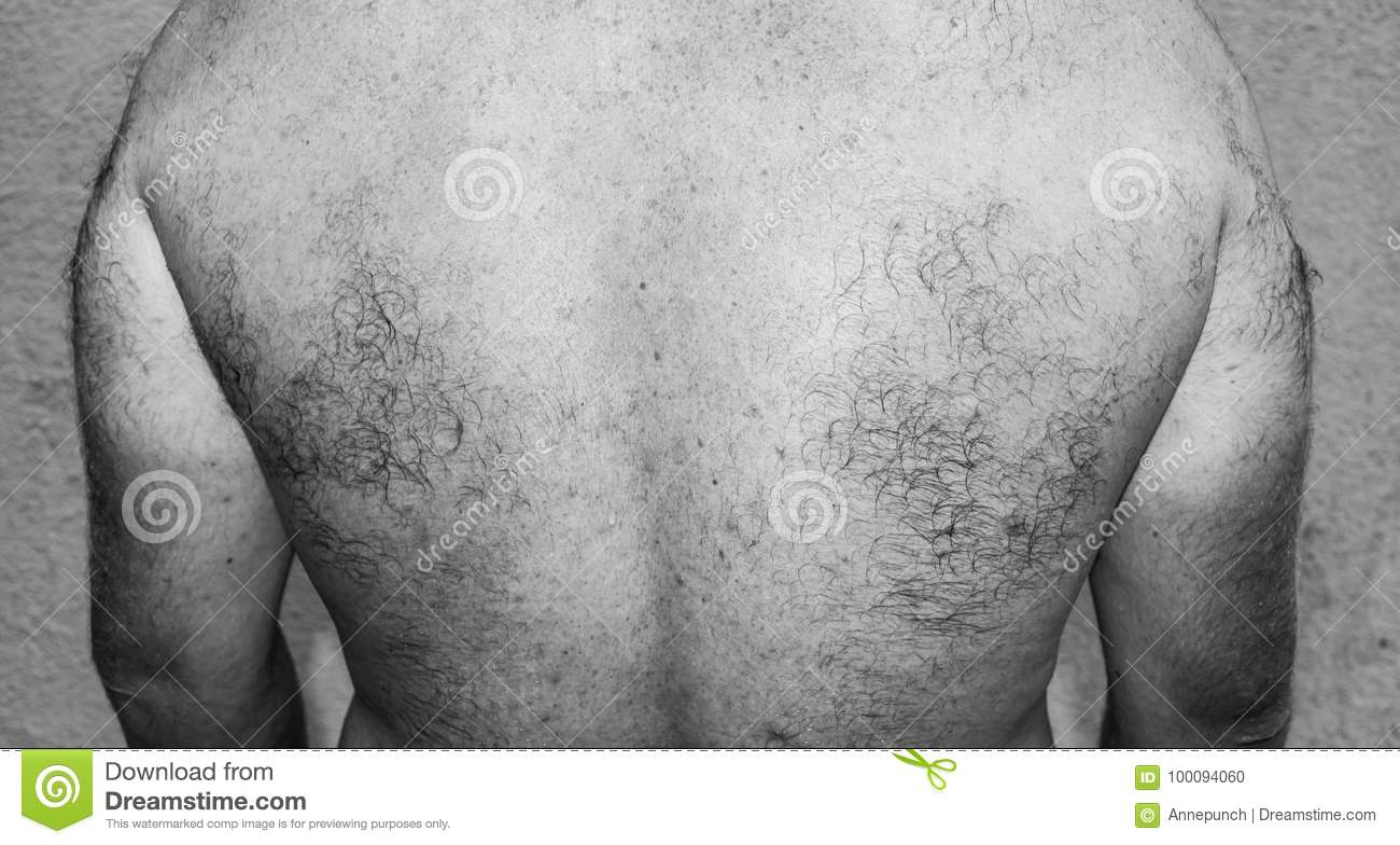 Adult hairy pictures