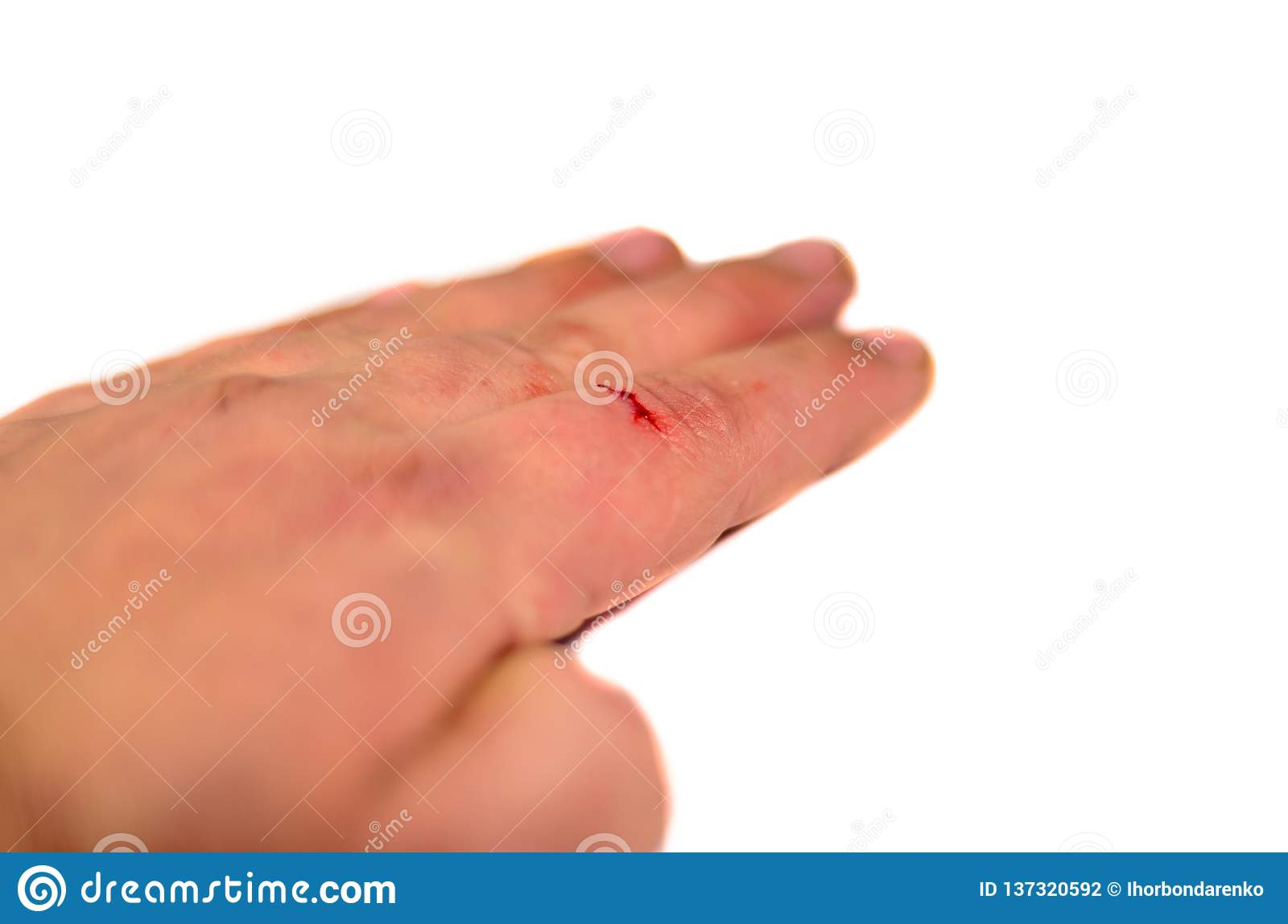 Male hand with bleeding finger isolated on white background